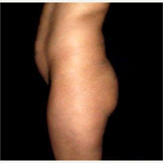 18-24 year old woman treated with Brazilian Butt Lift before 2007790