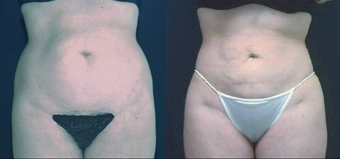 Liposculpture before 657920