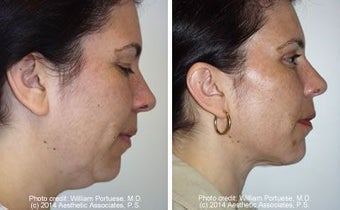 Liposuction of neck and double chin before 6812