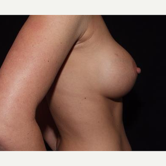 25-34 year old woman treated with Breast Implants after 3593573