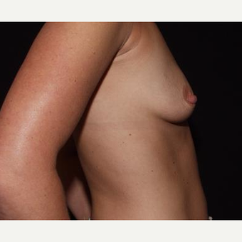 25-34 year old woman treated with Breast Implants before 3593573