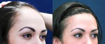 Forehead Reduction Surgery or Hairline Lowering Surgery 323754
