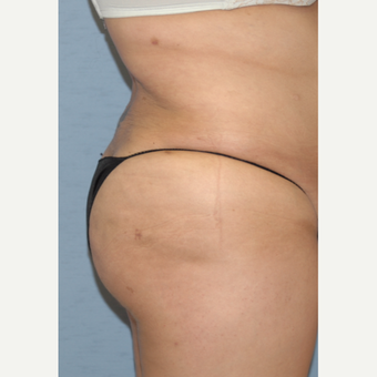 25-34 year old woman treated with Brazilian Butt Lift after 3265911
