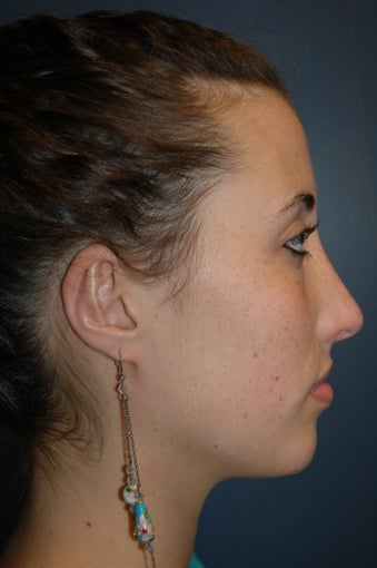 Nose Surgery after 928661
