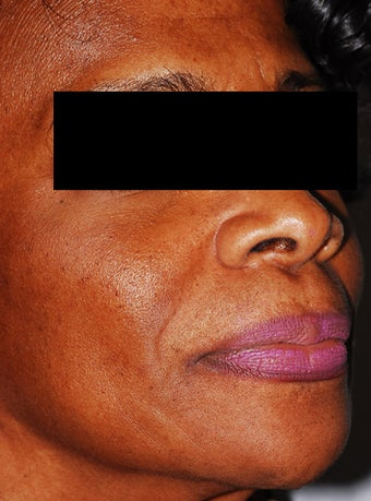 Female Patient Treated with Sculptra by Dr. Beverly Johnson in Washington, DC
