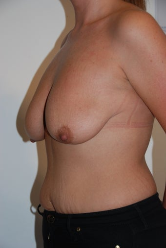 25 year old female Augmented Mastopexy 1005783