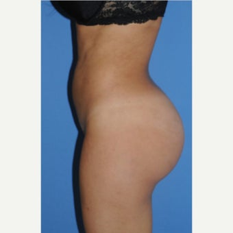 25-34 year old woman treated with Fat Transfer after 2348071
