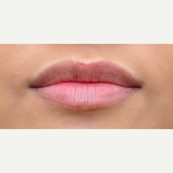 Lip augmentation result with one syringe of Juvederm after 3651309