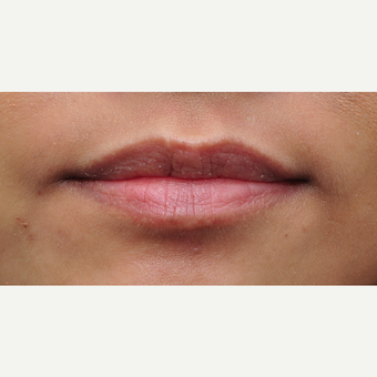Lip augmentation result with one syringe of Juvederm before 3651309