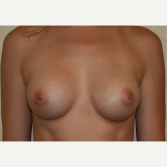 28 year old female with mentor smooth round silicone gel implants after 3208594