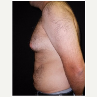 25-34 year old man treated with Male Breast Reduction before 3186000