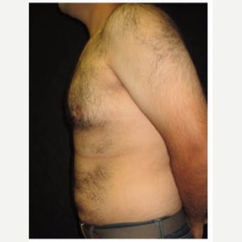 25-34 year old man treated with Male Breast Reduction after 3186000