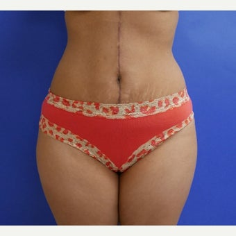 35-40 year old woman treated with Tummy Tuck, Scar Revision and Flank Liposuction after 2011987