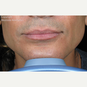 Non Surgical Jaw Enhancement after 2972593