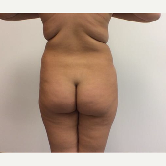 18-24 year old woman treated with Fat Transfer before 3658050