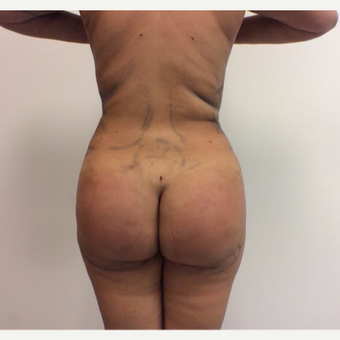 18-24 year old woman treated with Fat Transfer after 3658050