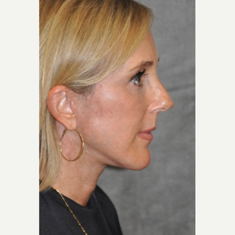 45-54 year old woman treated with Facelift after 3567151