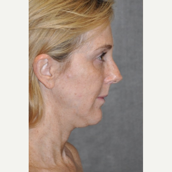 45-54 year old woman treated with Facelift before 3567151