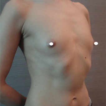 35-44 year old woman treated with Breast Augmentation before 3217943