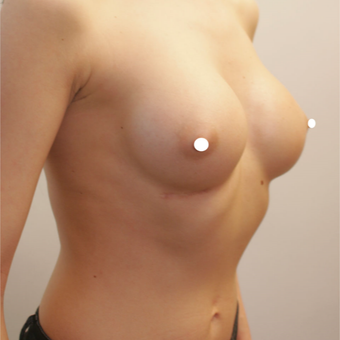 35-44 year old woman treated with Breast Augmentation after 3217943