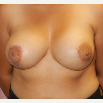 18-24 year old woman treated with Breast Augmentation after 3503069
