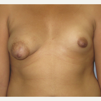 18-24 year old woman treated with Breast Augmentation before 3503069