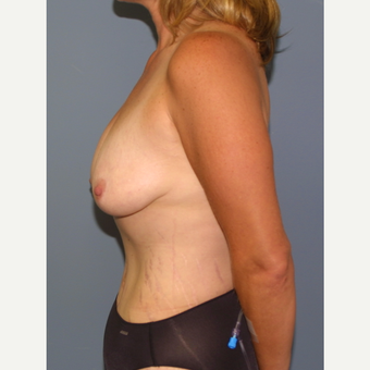 45-54 year old woman treated with Breast Lift with Implants before 3475998