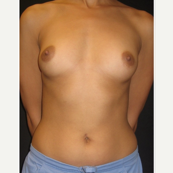 18-24 year old woman treated with Breast Augmentation before 3104090
