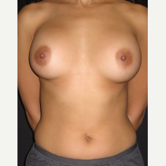 18-24 year old woman treated with Breast Augmentation after 3104090