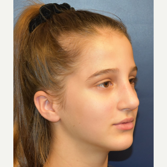 17 or under year old woman treated with Rhinoplasty after 3306023