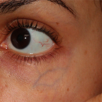 28 year old woman for large blue veins under her eyes before 3124163