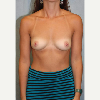 35-44 year old woman treated with Breast Augmentation before 3487009