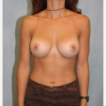 35-44 year old woman treated with Breast Augmentation after 3487009