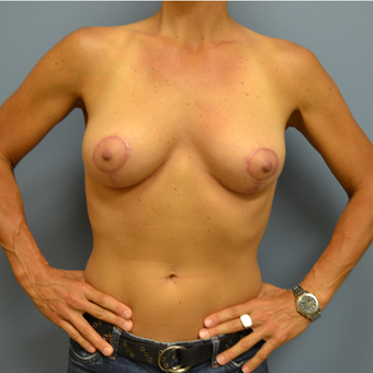 45-54 year old woman treated with Breast Lift after 3071869