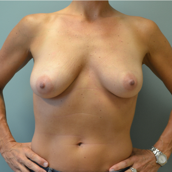 45-54 year old woman treated with Breast Lift before 3071869
