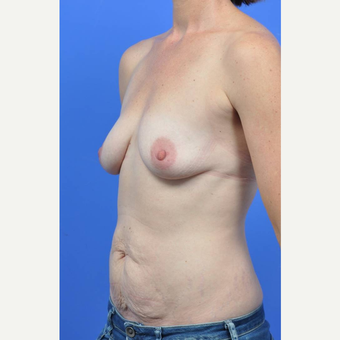 35-44 year old woman treated with Breast Augmentation before 3341557