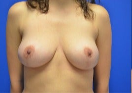 18-24 year old woman treated with Breast Reduction after 3344190