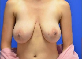 18-24 year old woman treated with Breast Reduction before 3344190