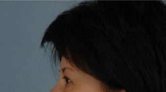 45-54 year old woman treated with Asian Eyelid Surgery before 3615826