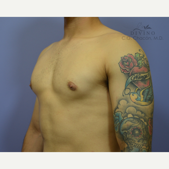 18-24 year old man treated with Nipple Surgery after 3421660