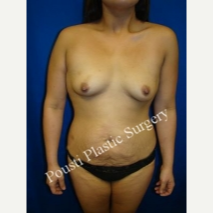 18-24 year old woman treated with Breast Implants before 3727442