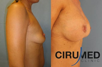 Supercharged breast augmentation (fat transfer/silicone) before 1125122