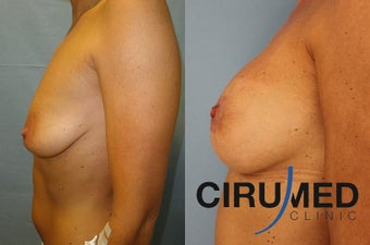 Supercharged breast augmentation (fat transfer/silicone) 1125122