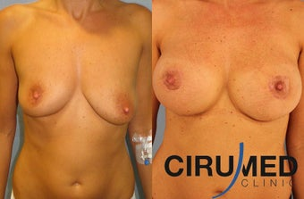 Supercharged breast augmentation (fat transfer/silicone) after 1125122