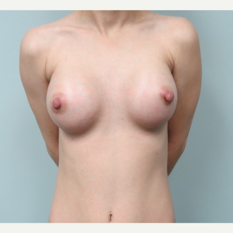 35 year old woman treated with Breast Implants after 3682875