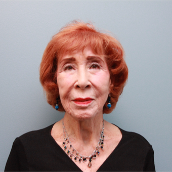 83 year old woman treated with the LiftLift ® which is similar to the MACS Facelift before 3544521