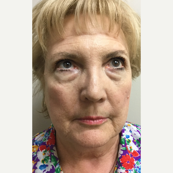 65-74 year old woman treated with Facelift, Neck Liposuction, Browlift, Upper & Lower Blepharoplasty before 3371382