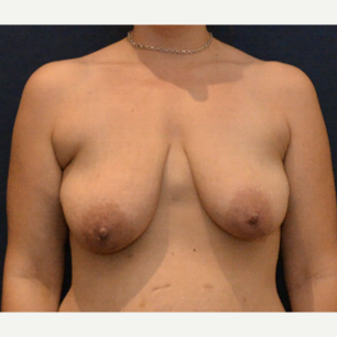 35-44 year old woman treated with Breast Lift with Implants before 3726925