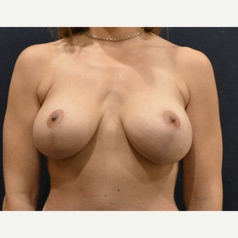 35-44 year old woman treated with Breast Lift with Implants after 3726925