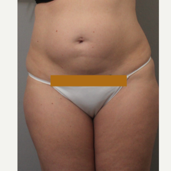 35-44 year old woman treated with Liposuction before 3494172